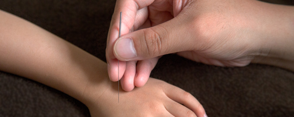 Chinese Acupuncture 02