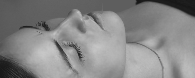 Facial Acupuncture for Reduce Wrinkles and Firm Skin